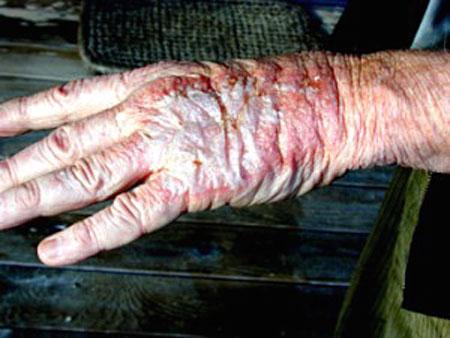 Hand na aanraking met chemovloeistof